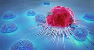 teste_cancer