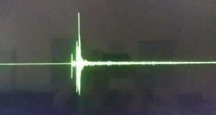 tremor_moc