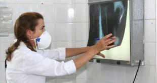 Dia Mundial de Combate à TuberculoseNa foto:Autora: Carol Garcia  / AGECOM